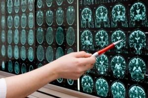 MR hjerne